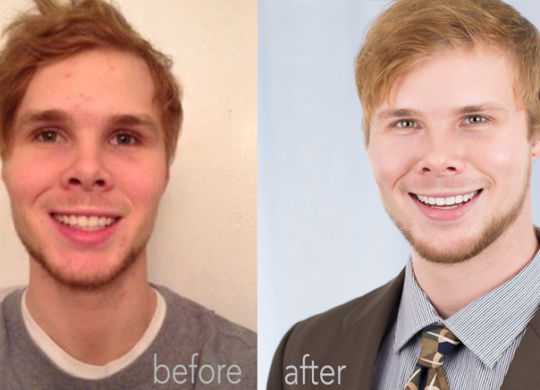 Kyle-Before-and-After